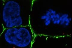Chromosomes-Gert-van-Capellen2